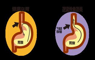 逆流性食道炎の図