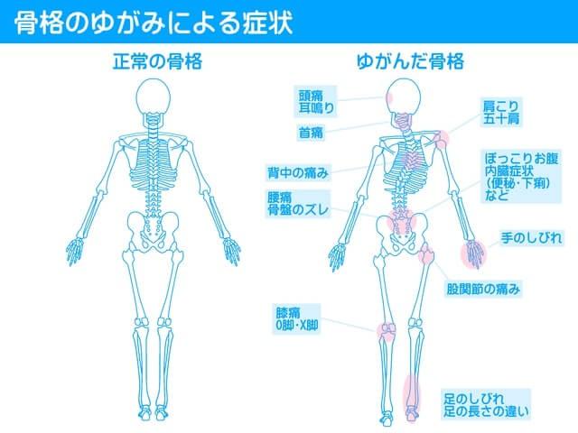 骨盤のゆがみによる症状