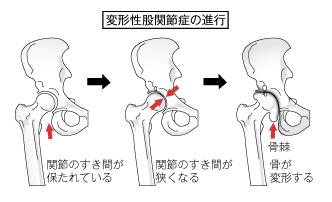 変形性股関節症の進行