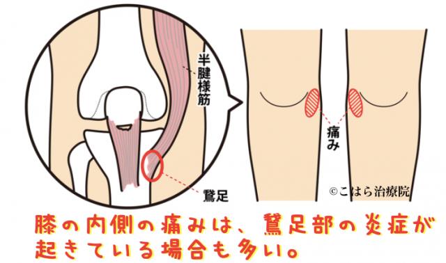 膝の内側の痛みは、鵞足部の炎症が起きている場合も多い。