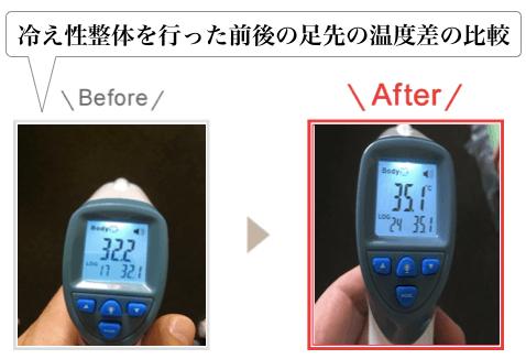 冷え性整を行った前後の足先の温度差の比較