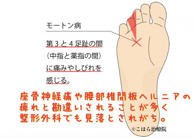 モートン病 第3と4足趾の間に痛みやしびれを感じる。