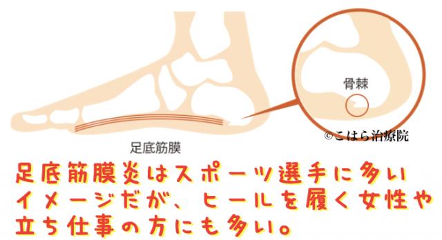足底筋膜炎はスポーツ選手に多いイメージだが、ヒールを履く女性や立ち仕事の方にも多い。