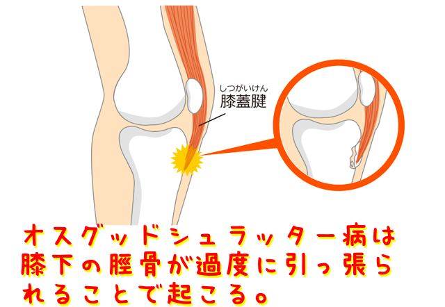 オスグッドシュラッター病は膝下の脛骨が過度に引っ張られることで起こる。